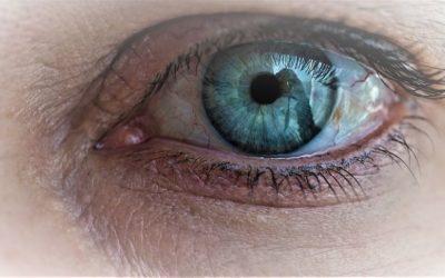 ¿Sufres queratitis? Descubre su origen, causas y tratamientos